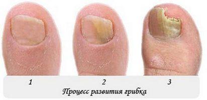 Лікує грибок стоп і нігтів