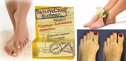 «Вальгусстоп» - крем від кісточки на нозі