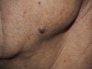 На фото папіломи і бородавки типу Внутрідермальний невус.