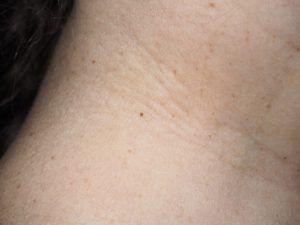 Папіломи на шиї: причини появи і лікування.