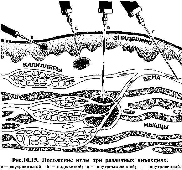 Парентеральний шлях введення лікарських засобів