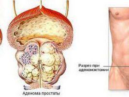 Перелік рекомендованих ліків при аденомі простати