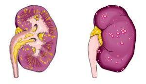 Пієлонефрит - симптоми, причини і своєчасне лікування