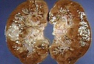 Клінічна картина пієлонефриту