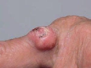 Плоскоклітинний рак шкіри: ознаки, стадії, лікування.