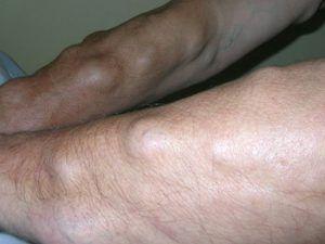 Чому з`явилася шишка під шкірою на руці, ногах, шиї, тілі?