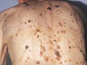 Чому з`являються нові родимки коричневого кольору - себорейний кератоз.