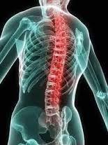 Полісегментарної остеохондроз - що це і як його лікувати?
