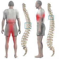 Хребетна грижа поперекового відділу