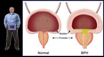 Препарати-пробіотики - це відмінний спосоізлеченія аденоми простати у чоловіків