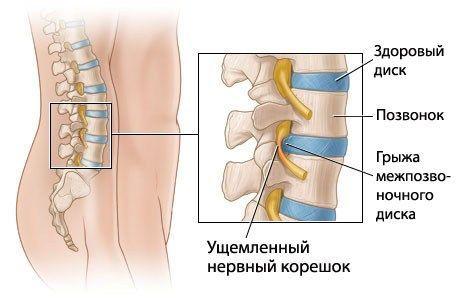 Ознаки міжхребцевої грижі: як визначити і діагностувати