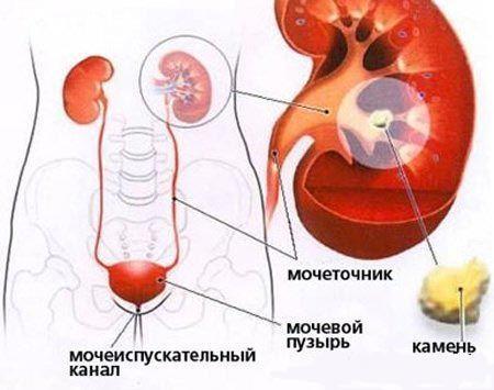 Ознаки сечокам`яної хвороби: симптоматика та діагностика недуги