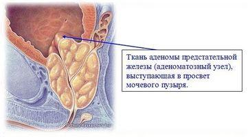 «Простата форте»: цінний препарат для лікування і профілактики чоловічих хвороб