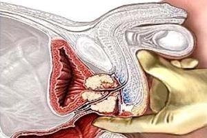 Одним із захворювань передміхурової залози є аденома