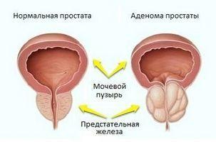 Препарати мають стимулюючий вплив на поверхневі рецептори м`язів