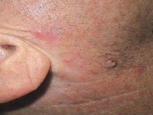 Рак шкіри початкова стадія: симптоми, ознаки, фото