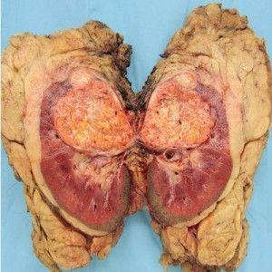 Рак нирки - ранні симптоми і лікування