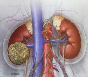 Симптоми раку нирки