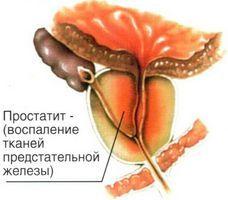 Різні методи діагностики і лікування паренхіматозного простатиту