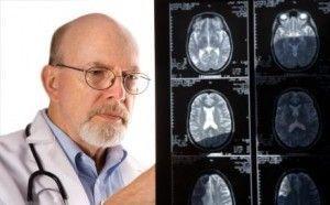 Розроблено новий підхід до лікування хвороби альцгеймера?