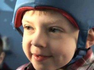 Симптоматична епілепсія у дітей