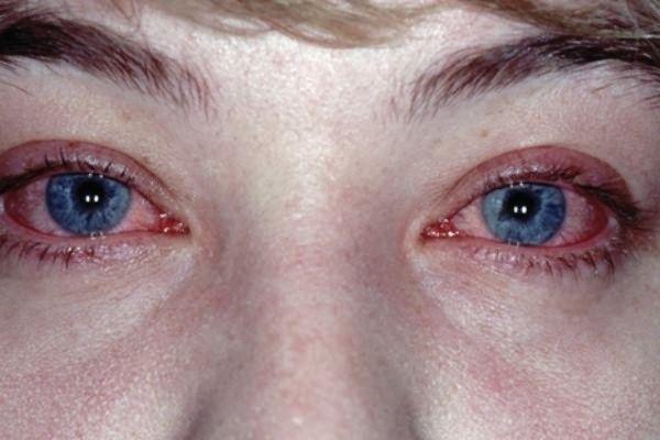 Сезонна алергія лікування народними засобами