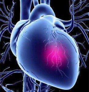 Стенокардія: причини, види, симптоми, діагностика, лікування