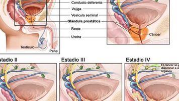Простату по-іншому називають передміхурової залозою, яка відповідає за формування статевого насіння