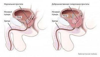 Сечовий міхур повинен бути повний перед кожною процедурою