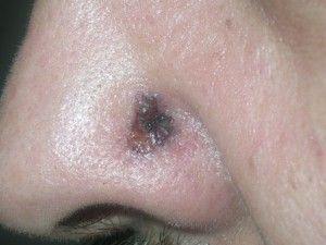 Темна родимка з виразкою в центрі, краї злегка підносяться. Це базаліома шкіри.