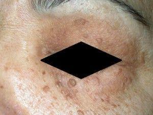 Світло - коричневі нарости на шкірі обличчя. Схожі на папіломи. Ці родимки - себорейний кератоз.