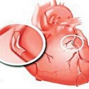 Тромв серце що це таке?