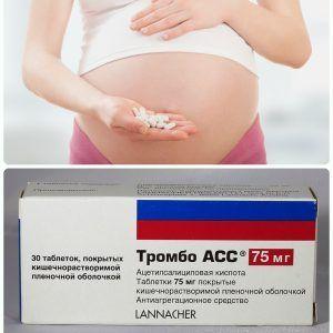 Тромбо ас при вагітності