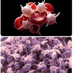 Тромбоцити підвищені в крові що це значить?