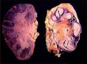 Туберкульоз нирок. Клініка, діагностика та лікування.