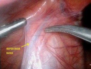 ендоваскулярна облітерація яичковой вени