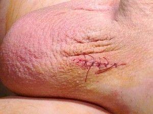 Варикоцеле після операції