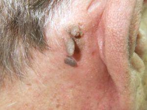 Висячі родимки на шиї, тілі: види, причини і лікування.