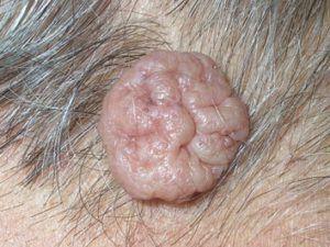 Внутрідермальний невус в формі висячої родимки на шиї тілесного кольору.