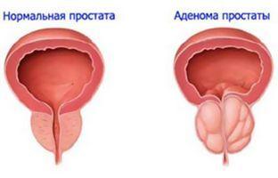 Значення яких показників змінюються в аналізі крові при простатиті